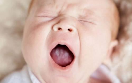 Белый налёт на языке у новорождённого. Почему возникает белый налёт на языке у новорождённого и надо ли бороться? 10