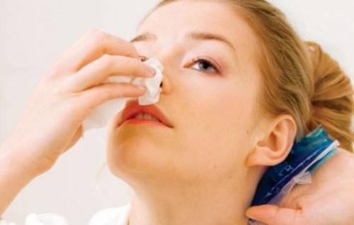К чему снится кровь из носа: у себя или других? 2
